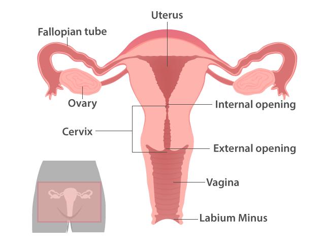 Women Talk Uterine Prolapse When The Pelvic Organs Fall Down