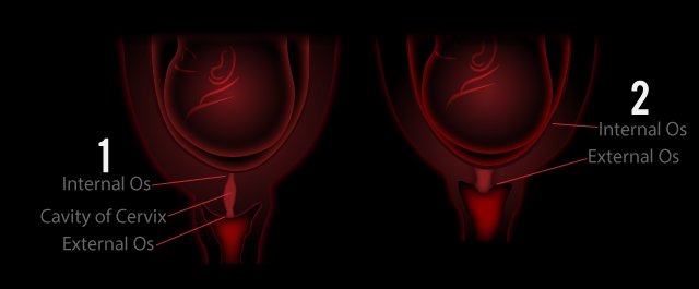 how to tell if dilated