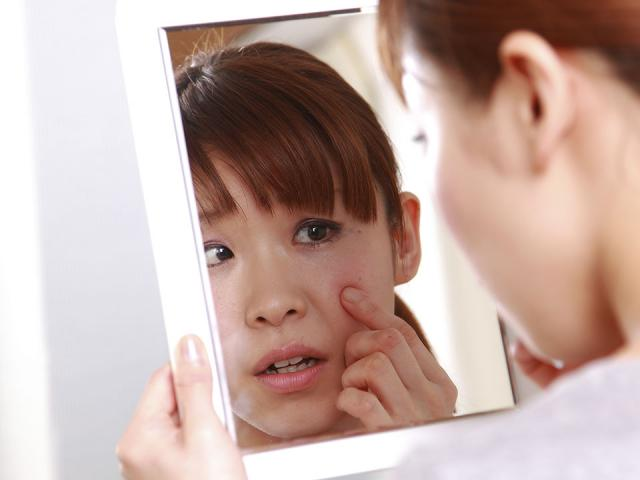 US FDA approves dermal filler to treat acne scarring
