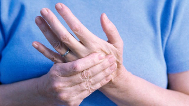 People With Psoriasis May Have Undiagnosed Psoriatic Arthritis 2
