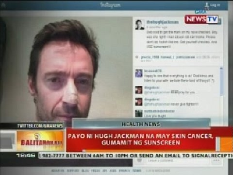 Payo ni Hugh Jackman na may skin cancer, gumamit ng sunscreen