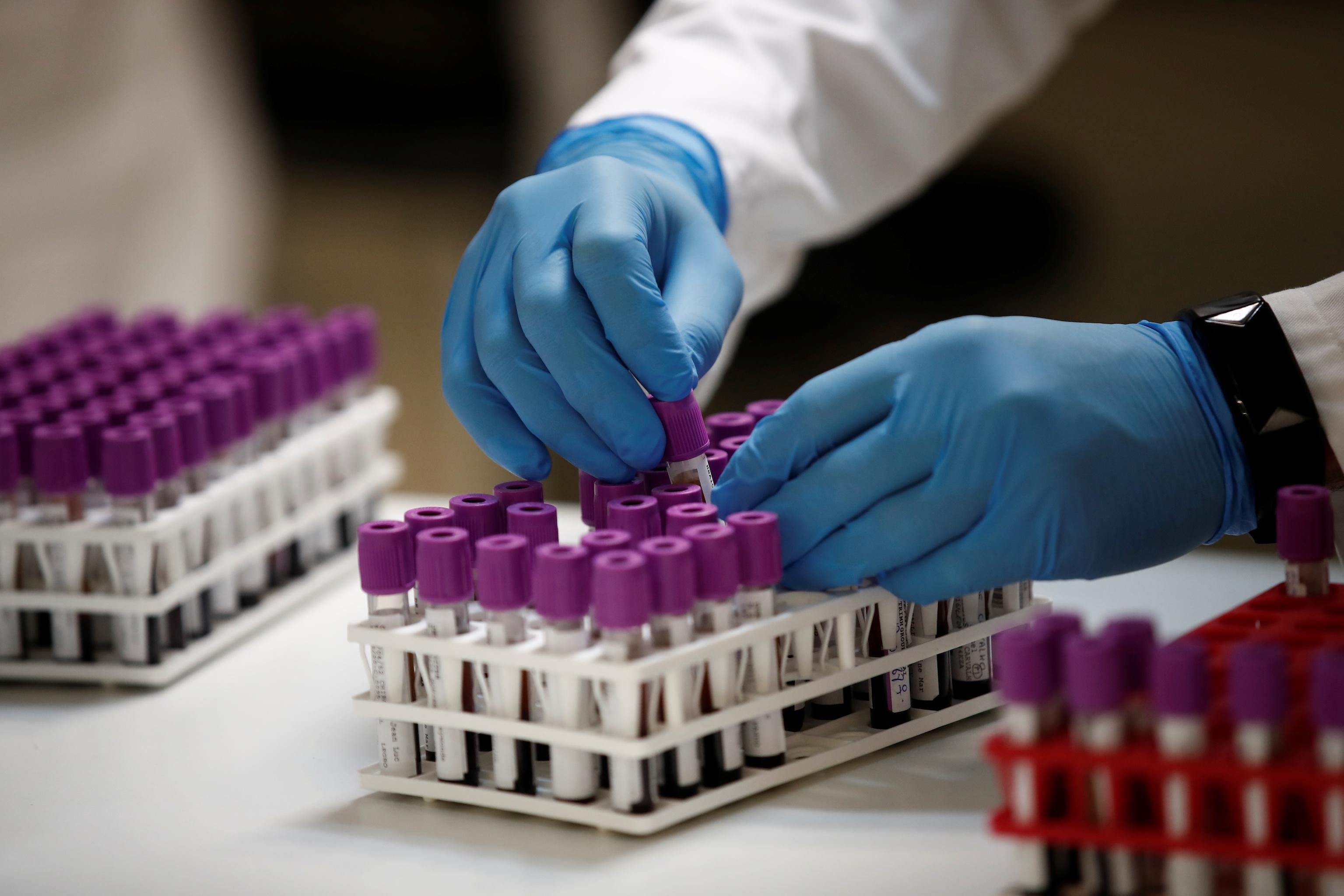 Novel coronavirus thumbnail COVID-19 laboratory test thumbnail testing