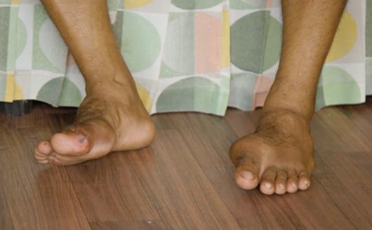Paano maiiwasan ang gouty arthritis?